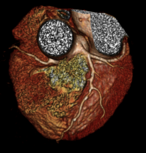 http://www.rbhh-specialistcare.co.uk/sites/default/files/Inline%20images/CT%20scan%20of%20coronary%20arteries%20%20%281%29%203D%20view.png